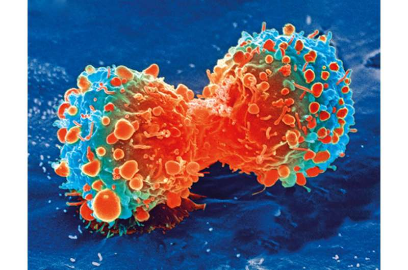 Immunotherapy after surgery reduces deadly relapse risk in advanced bladder cancer